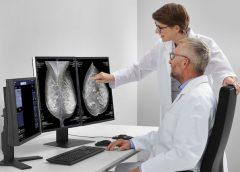 Lepšia diagnostika rakoviny prsníka vďaka umelej inteligencii